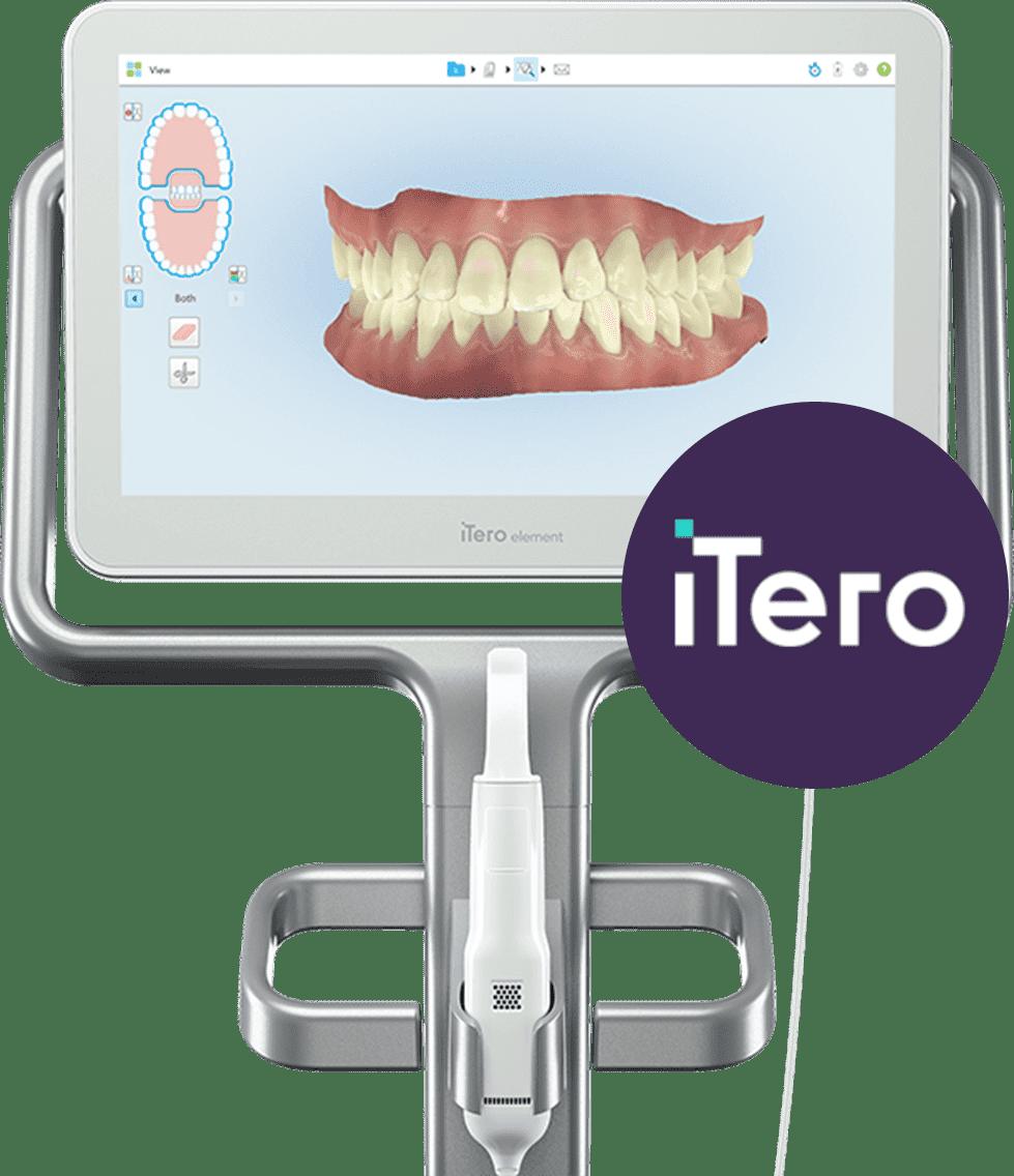 デジタル3D光学スキャナーのiTero(アイテロ)